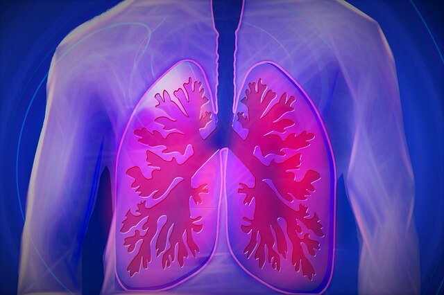 pljučna embolija